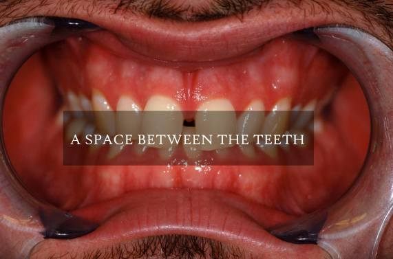 A Space Between The Teeth