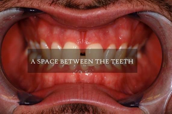 A Space Between The Teeth